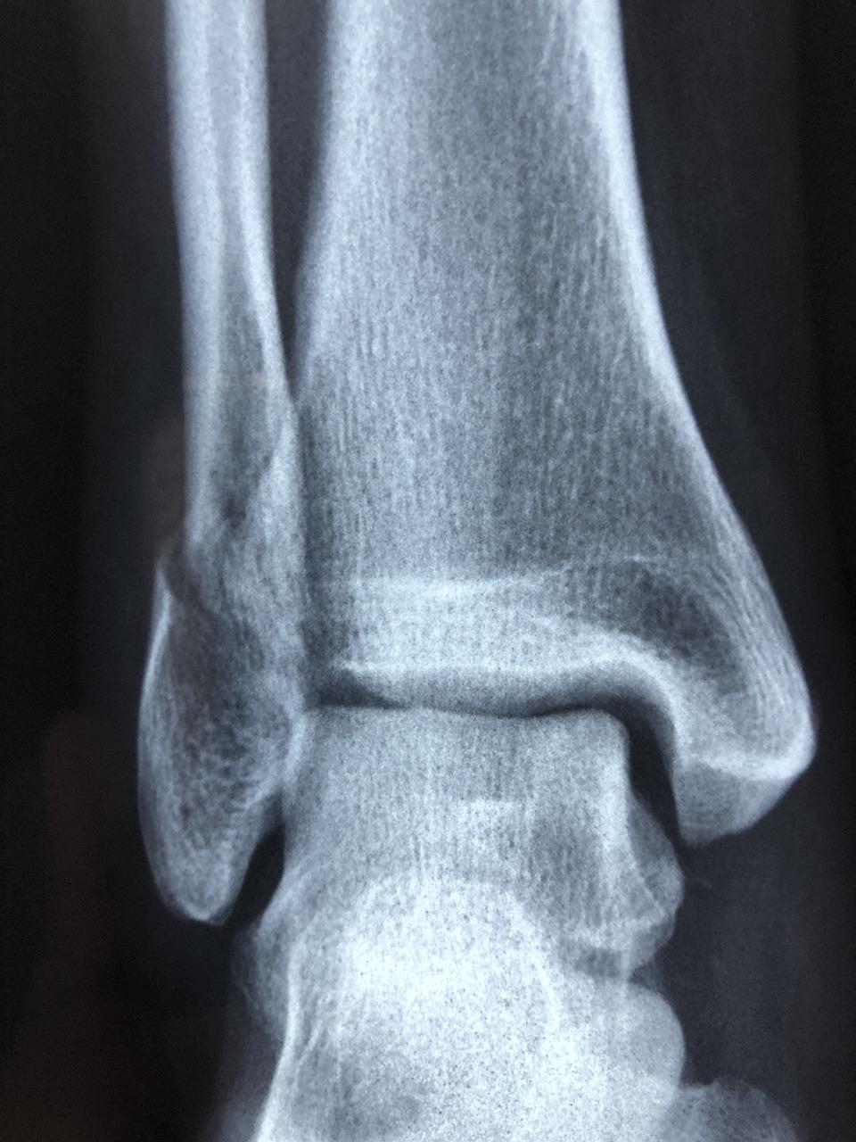 radiography-3057768_1280