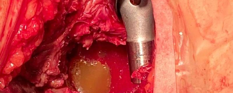 Abordaje capsular anterior