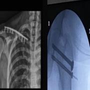 Fractura femur y clavicula